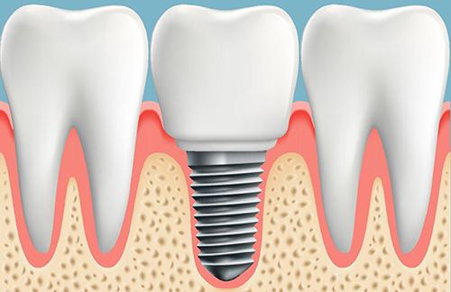 Trồng răng implant – giải pháp tốt nhất cho răng bị mất – Nha Khoa Numberone