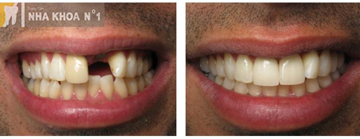 implant-nhakhoano1 (10)