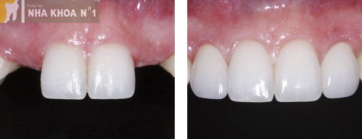 implant-nhakhoano1 (2)