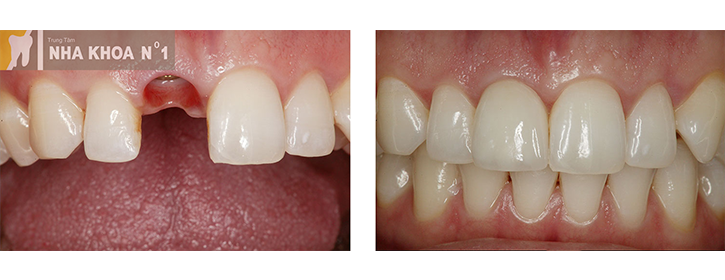implant-nhakhoano1 (3)