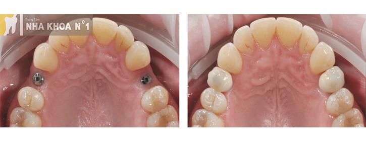 implant-nhakhoano1 (7)