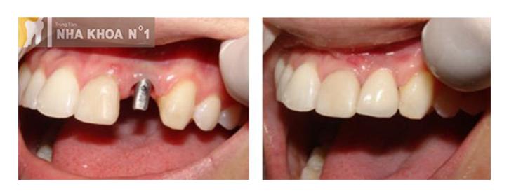 implant-nhakhoano1 (9)