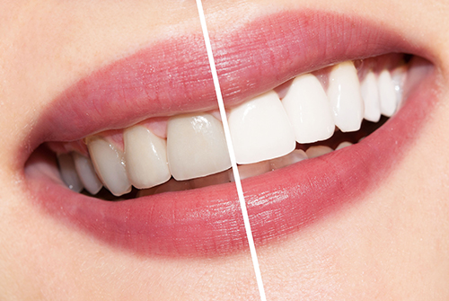 Tẩy trắng răng mang lại hàm răng trắng sáng, nụ cười tự ti