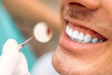 Dental cleaning HCMC