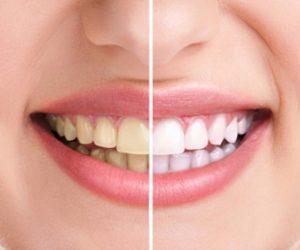 Răng trắng sau khi tẩy được bao lâu