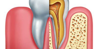 Tủy răng là gì?