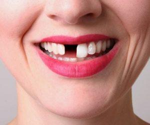 Mất răng có cần trồng lại răng không