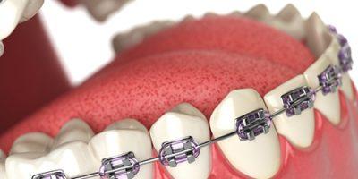 Quy trình các bước niềng răng