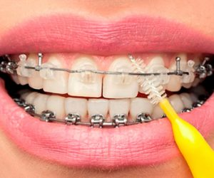 Chăm sóc răng niềng đúng cách