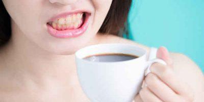 Chăm sóc răng sau tẩy trắng