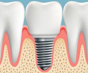 Trồng răng implant là gì