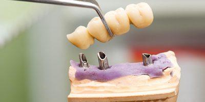 khi nào nên trồng răng implant