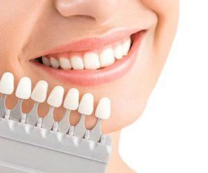 Quy trình dán răng sứ veneer