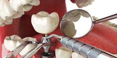 Quy trình trồng răng implant