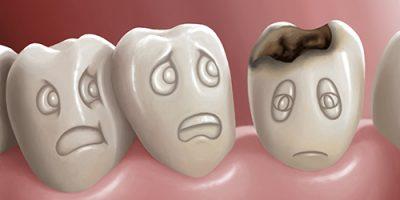 Sâu răng: nguyên nhân, triệu chứng, diễn biến, giải pháp và cách phòng ngừa